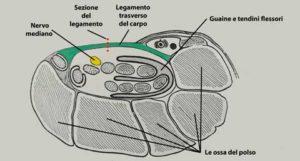 Anatomia del tunnel carpale con il nervo mediano e il legamento trasverso (taglio anatomico del polso).