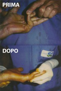 Esempio di un grado 4 di malattia di Dupuytren, curato con la tecnica percutanea-infiltrativa. Tempo operatorio di 20 minuti, con buono risultato immediato.
