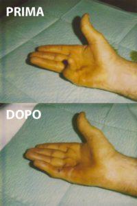 Esempio di un grado 4 di malattia di Dupuytren, curato con la tecnica percutanea-infiltrativa. Tempo operatorio di 20 minuti, con ottimo risultato immediato.