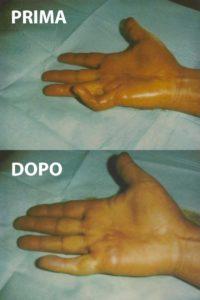 Esempio di un grado 3 di malattia di Dupuytren, curato con la tecnica percutanea-infiltrativa. Tempo operatorio di 15 minuti, con ottimo risultato immediato.
