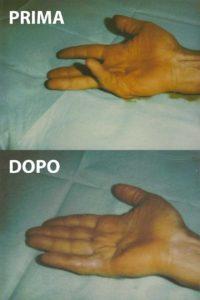 Esempio di un grado 1 di malattia di Dupuytren, curato con la tecnica percutanea-infiltrativa. Tempo operatorio di 15 minuti, con ottimo risultato immediato.