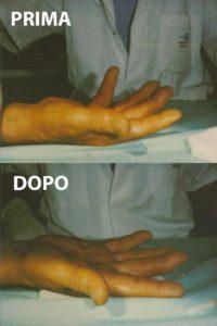 Esempio di un grado 3 di malattia di Dupuytren, curato con la tecnica percutanea-infiltrativa. Tempo operatorio di 20 minuti, con risultato buono immediato.