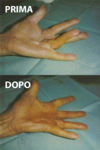 Esempio di un grado 2 di malattia di Dupuytren, curato con la tecnica percutanea-infiltrativa. Tempo operatorio di 10 minuti, con risultato ottimo immediato.