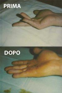 Esempio di un grado 2 di malattia di Dupuytren (2 dita), curato con la tecnica percutanea-infiltrativa. Tempo operatorio di 20 minuti, con risultato ottimo immediato.