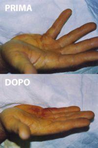 Esempio di un grado 2 di malattia di Dupuytren, curato con la tecnica percutanea-infiltrativa. Tempo operatorio di 15 minuti, con risultato ottimo immediato.