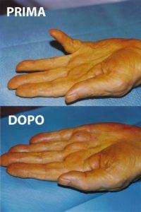 morbo-di-dupuytren-intervento-mano-cure-14Esempio di un grado 3 di malattia di Dupuytren, curato con la tecnica percutanea-infiltrativa. Tempo operatorio di 15 minuti, con risultato ottimo immediato.