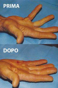 Esempio di un grado 2 di malattia di Dupuytren, curato con la tecnica percutanea-infiltrativa. Tempo operatorio di 15 minuti, con risultato buono immediato.