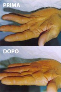 Esempio di un grado 1 di malattia di Dupuytren, curato con la tecnica percutanea-infiltrativa. Tempo operatorio di 10 minuti, con ottimo risultato immediato.