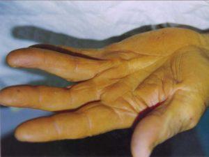 Esempio del grado 1 della malattia di Dupuytren
