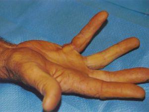 Esempio del grado 2 della malattia di Dupuytren