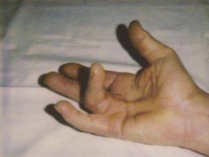 Esempio del grado 3 della malattia di Dupuytren