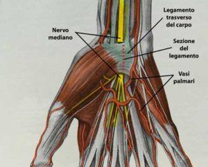 Sezione sottocutanea mini-invasiva del legamento carpale.